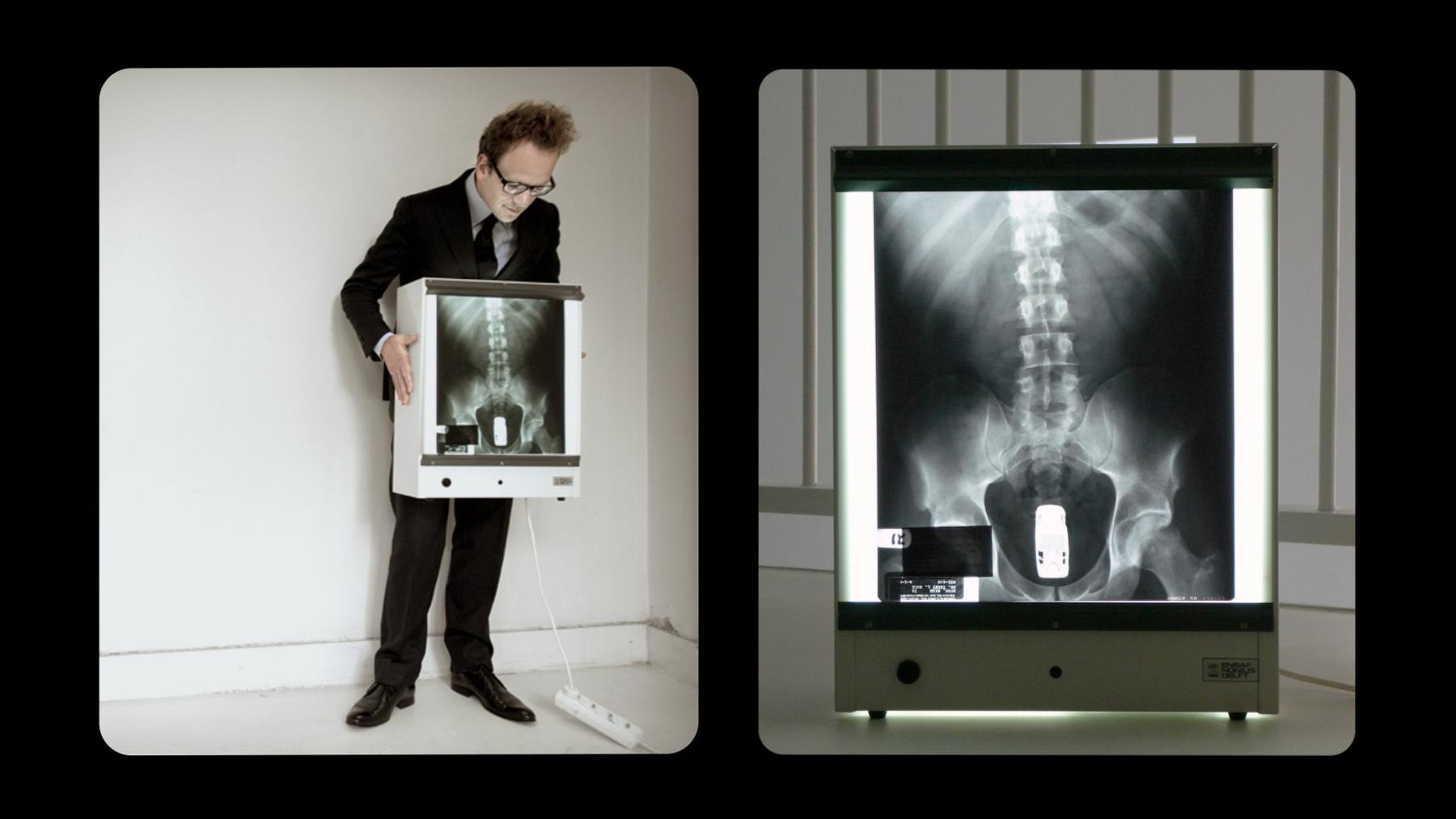 Butt X-ray